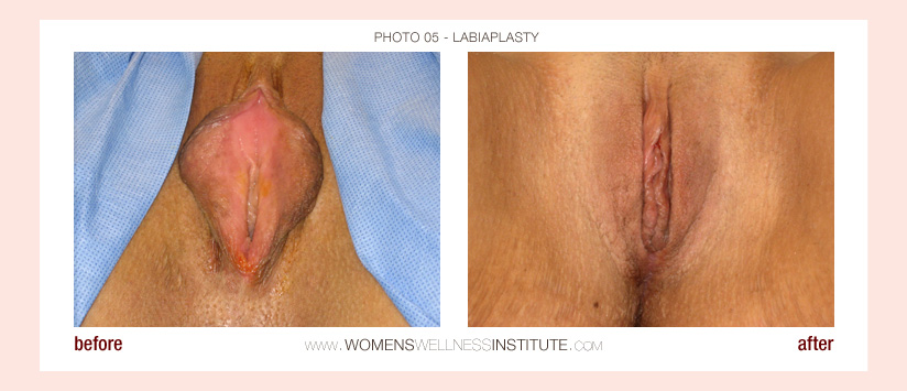 Vagina Rekonstruktion Drs Indiana pa